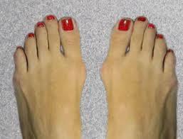 Deformazione del piede con il classico alluce valgo
