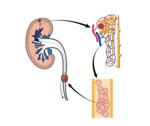 I calcoli renali si formano nella cavità del rene