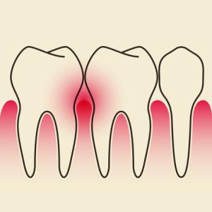 Gengive arrossate causate dalle malattia parodontale