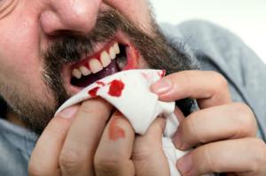 Uomo che soffre di sanguinamento gengivale