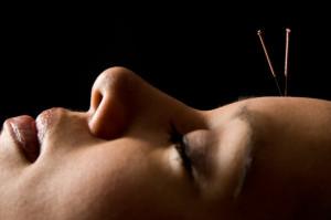 Trattamento di agopuntura come rimedio per il mal di testa
