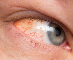 Arrossamento zona oculare da congiuntivite cronica