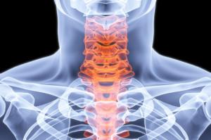Radiografia dischi intervertebrali del collo